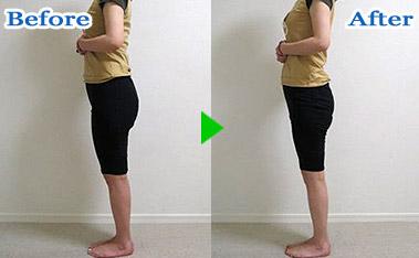 産後の骨盤矯正 施術例 2